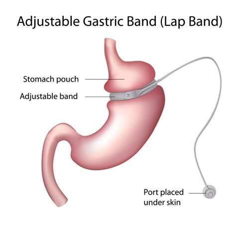 adjustable gastric band (lap band) diagram