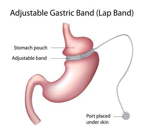 adjustable gastric band (lap band) diagram