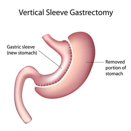vertical sleeve gastrectomy diagram